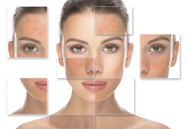 Are you frustrated by Rosacea?